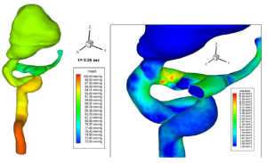 Total pressure and shear stress in an aneursym. CFD solution by Fluent. Image from Nanduri et al.