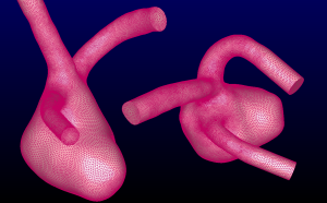 Can you predict which one of these two aneurysms will rupture? The two challenge geometries are shown in Pointwise.