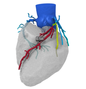 Using geometry from CT scans, this modeling of blood flow with CFD is one example of computational medicine. See associated text for link. Image from International Science Grid This Week.