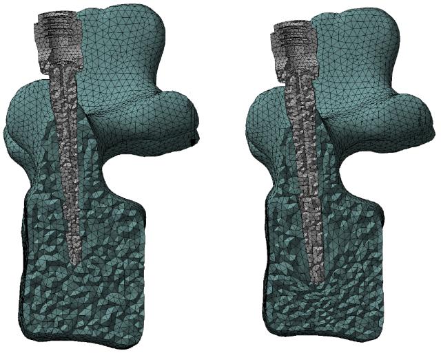 morph-vertebra
